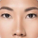 ศัลยกรรมตา คลีนิคศัลยกรรม คลีนิคเสริความงาม ตาสองชั้น